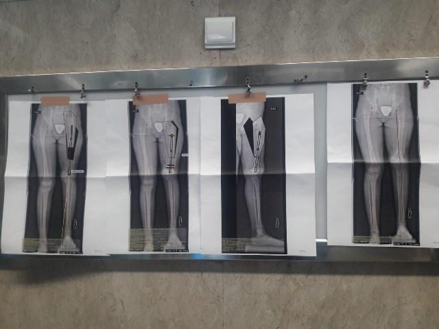 Cirurgia ortopedia pediatrica